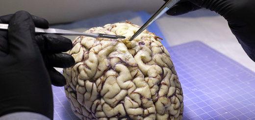 cervello studio