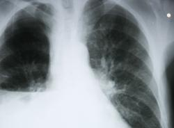 radiografia polmoni cancro
